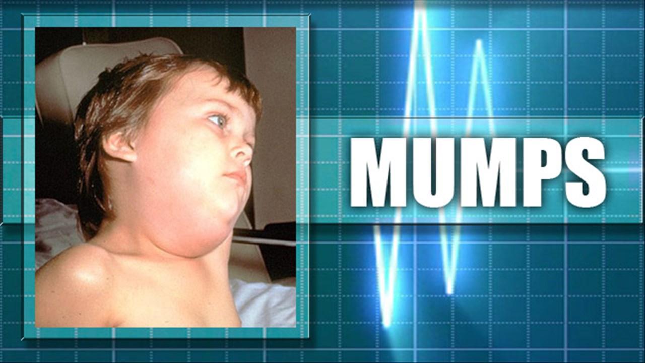 More Mumps At K-State